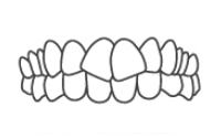 Crowded/Crooked Teeth