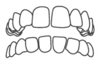 Gappy Spaced Teeth